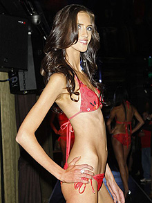Stephanie Naumoska anorexic for miss universe